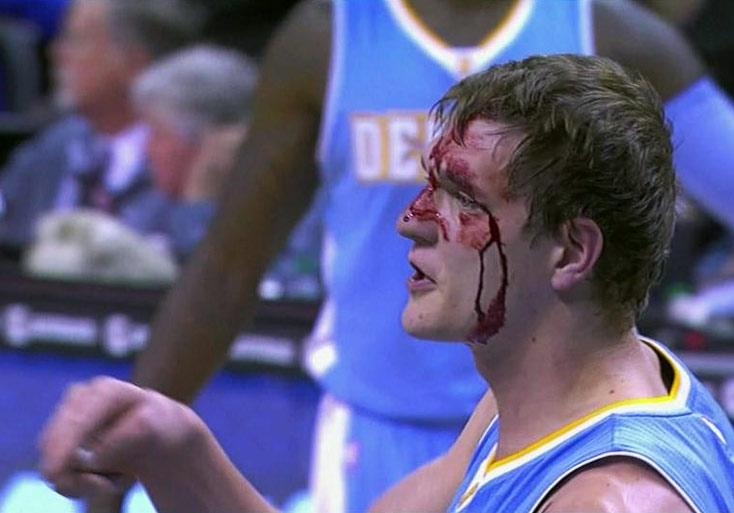Timofey Mozgov had 2pts, 3rebs & 4 stitches vs the Hornets