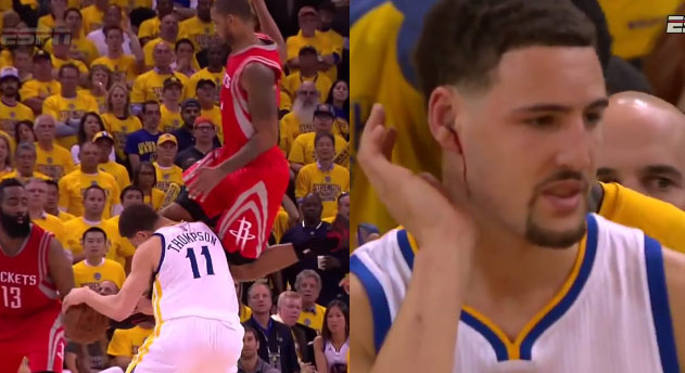 Klay Thompson's Bloody Ear After Getting a Knee to the Face From Trevor Ariza