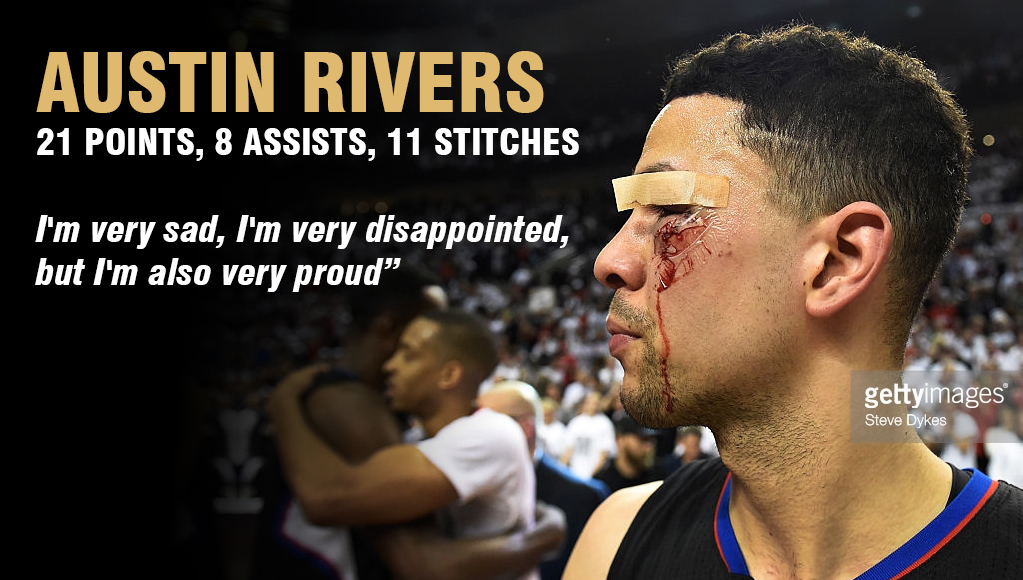 Austin Rivers 21 Points & 11 Stitches In Respect Earning Performance In GM6 Loss
