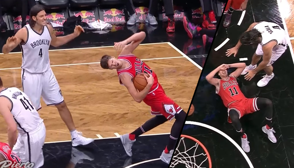 Doug McDermott Gets Hit In The Eye By Scola, Open Dunk Rejected By The Rim
