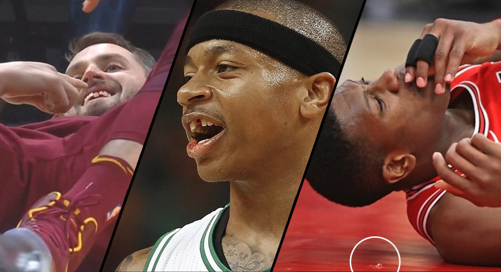 NBA Players Losing Teeth During Games
